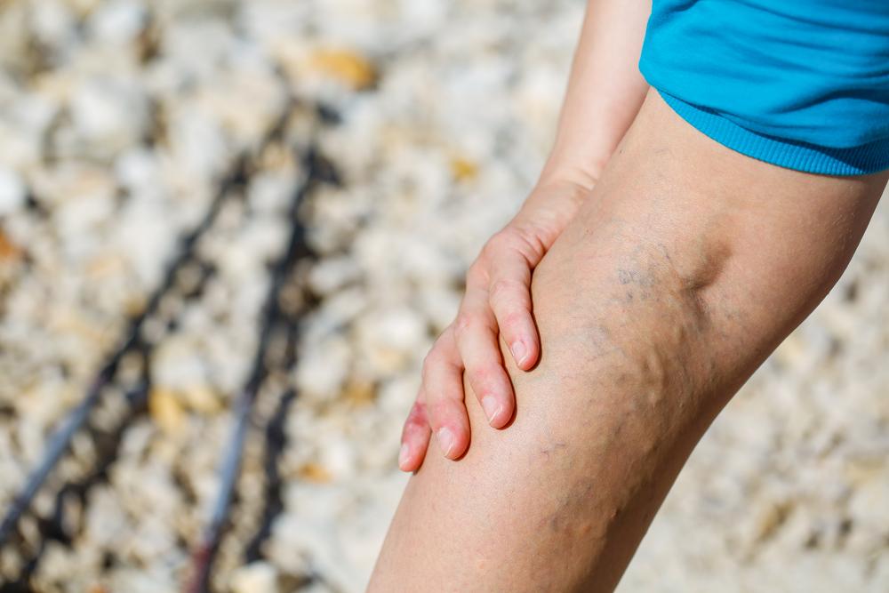 Mi a vérrög a lábban?? - Megelőzés