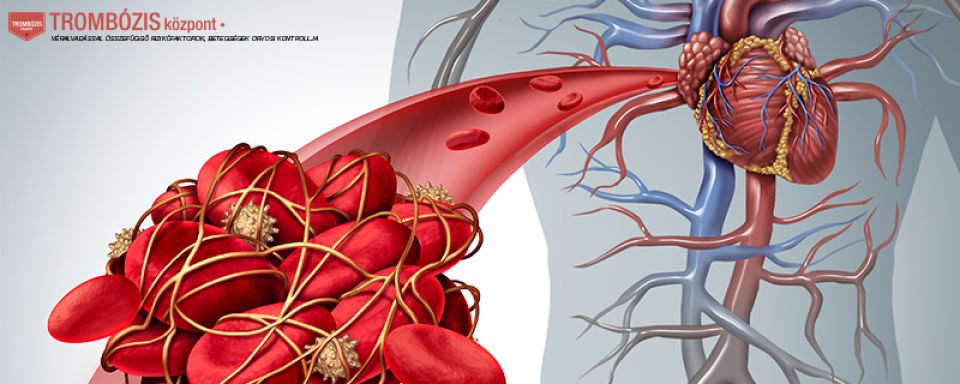 visszerek kezelése altufyevóban az epidurális tér visszér