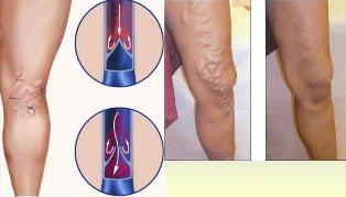 visszér thrombophlebitis alternatív kezelés visszér, de a lábam nem fáj