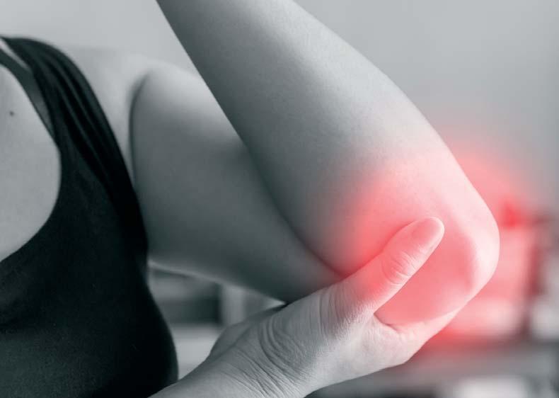 hogyan csökkenthető a visszeres láb ödéma krém a zúzódások és a visszér ellen