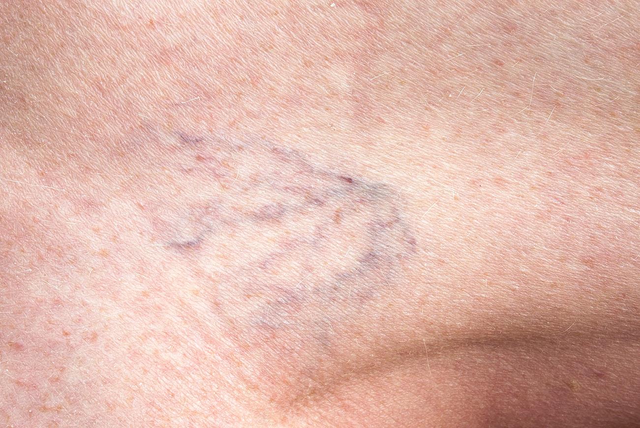 testépítők és visszerek a lábak varikózisának kezelése alternatív módszerekkel