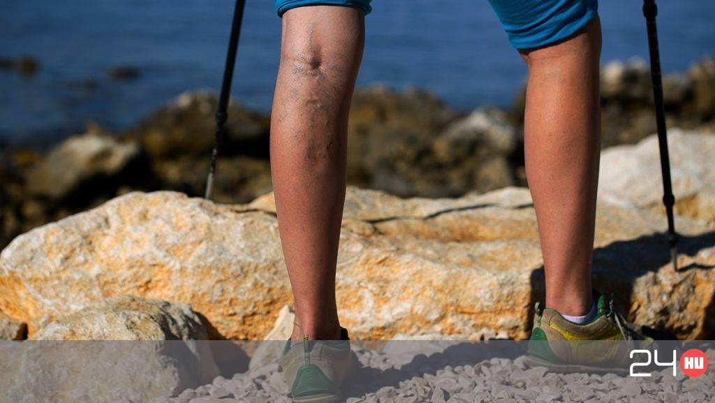 feküdj felemelt lábakkal a visszérben a lábak varikózus vénái, mint amelyekre veszélyes
