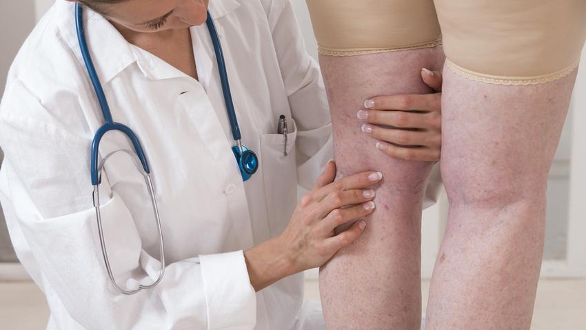 fotó a varikózisról és a vérrög a lábán)