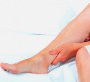 a vénák visszértágulatokkal törnek fel fotó a lábak varikózisáról