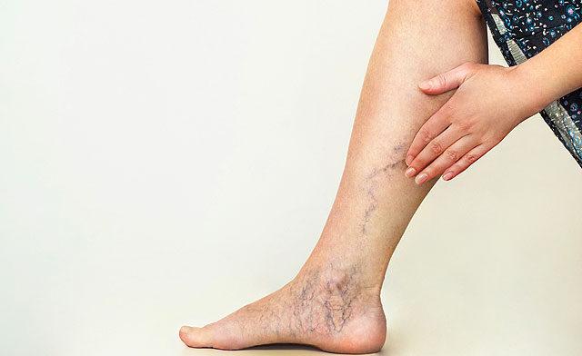 vénák duzzadnak a lábakon visszér
