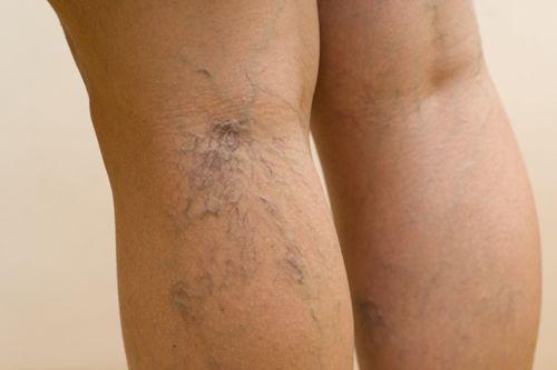 a visszeres lábak alternatív kezelése)