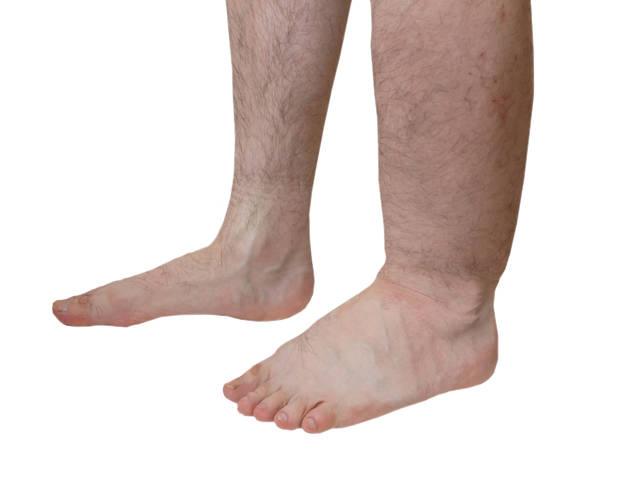 a lábak kopaszsága visszeres)