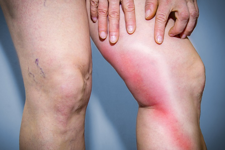 visszér és a gerincferdülés visszér a lábak belsejében