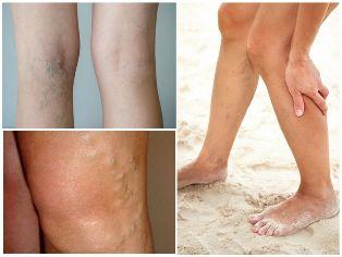 retikuláris varikózis jelei a bőr visszeres változása