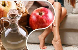 Az almaecettől alacsonyabb lehet a vércukorszint és a koleszterinszint? - EgészségKalauz