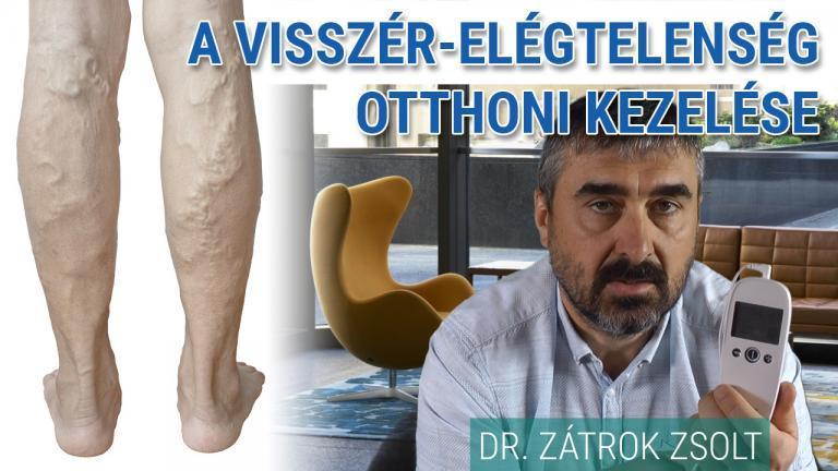 visszeres fáradtság a lábakban)