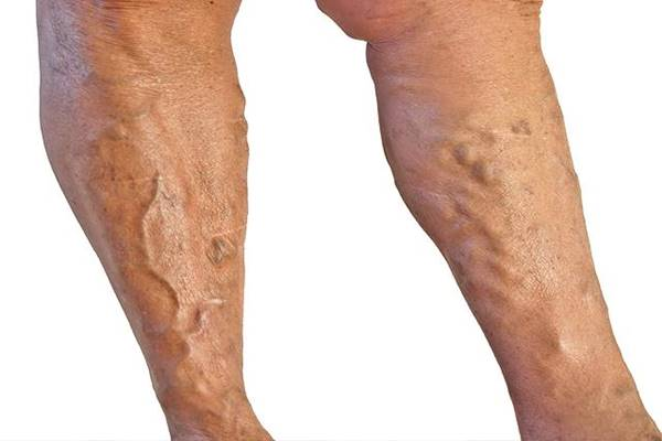 Meddig viselnek kompressziós fehérneműt a vastagbél skleroterápia után