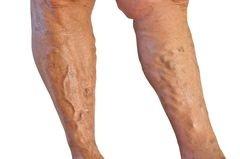 a visszerek működése a lábakon, ahogy nevezik)
