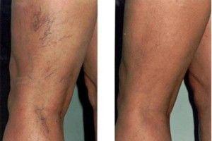 krém visszeres arcon a varikózisos lábakra vonatkozó eljárások