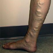 A felszínes vénák betegségeiről