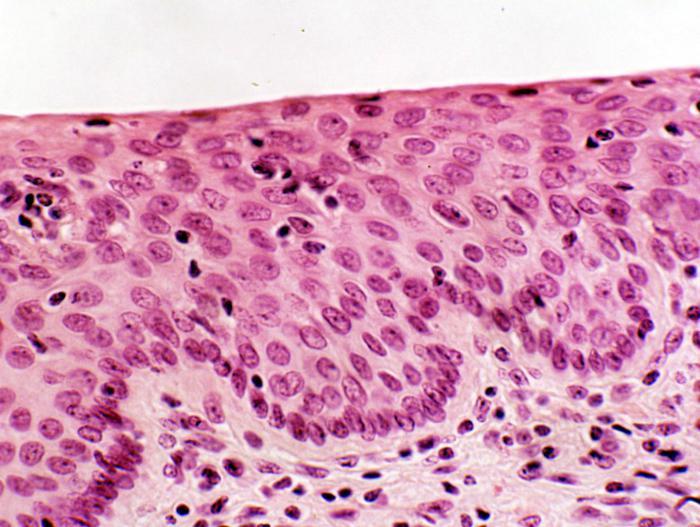 az alsó végtagok retikuláris varikózisa, mi ez)