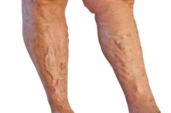 recept a visszerek a lábak