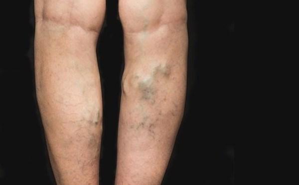 Műtét után, az erek eltávolítása a lábakon