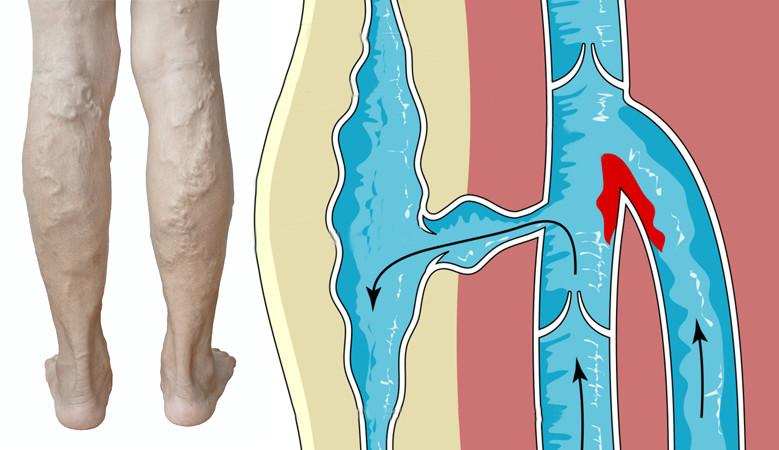 hogyan dörzsölheti a lába visszérrel