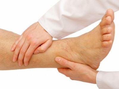 mélyvénás trombózis és visszér viszkető láb visszér