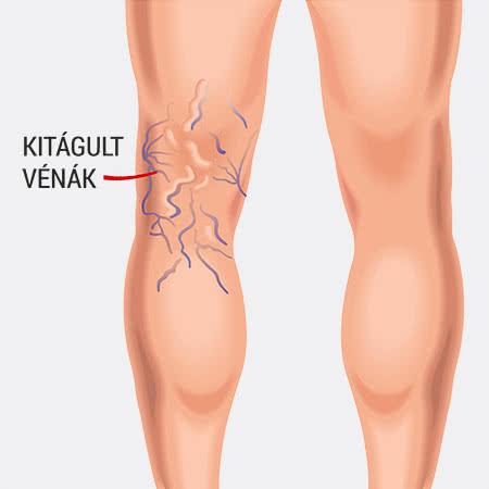 A lábak visszeres tünetei férfiaknál