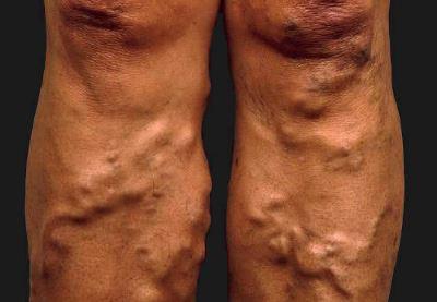 visszér férfiaknál a lábakon tünetek