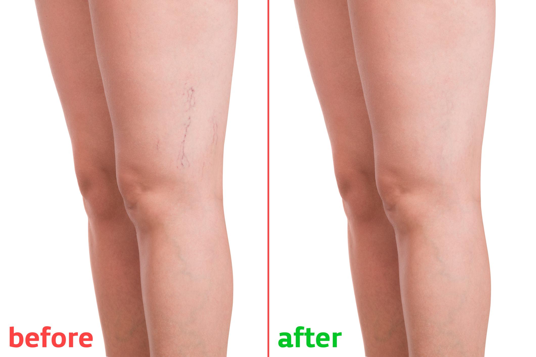 venotonikumok a lábak varikózisában
