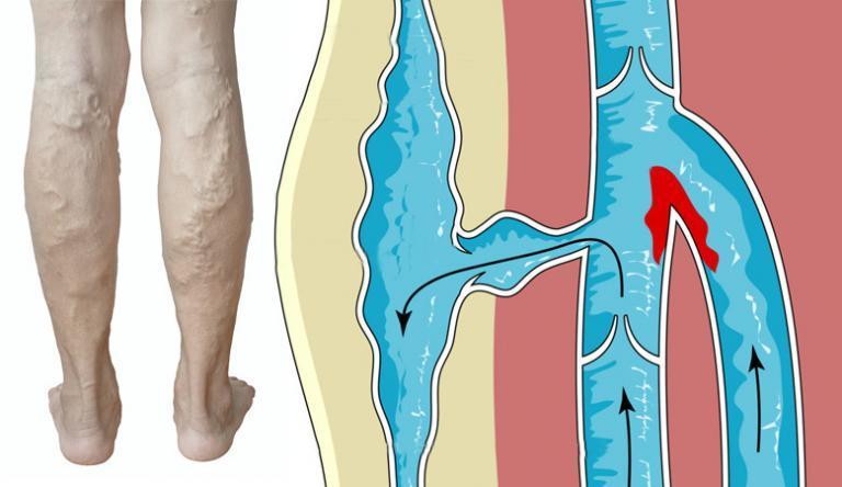 múmia visszeres és thrombophlebitis