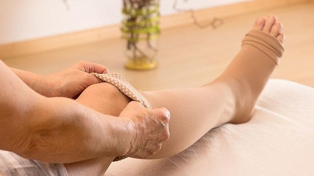 hogyan lehet lekötni a lábát visszérrel