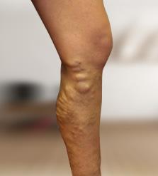 szivárgó lábak visszér)