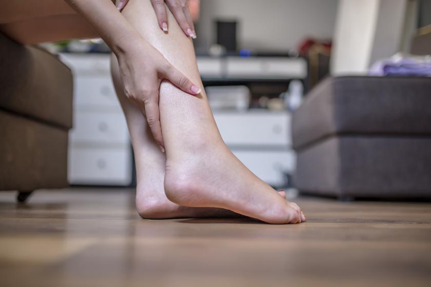 visszér, az egyik láb fáj a visszér kezdeti szakasza fotó