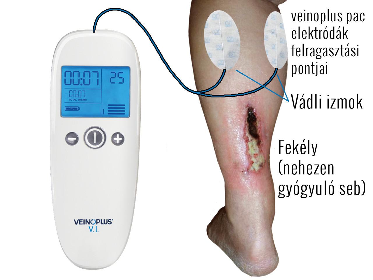 mi okozza a lábak varikózisát a legjobb visszérkrémek értékelése