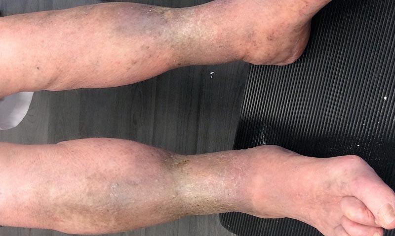 barna foltok a lábakon visszérrel)