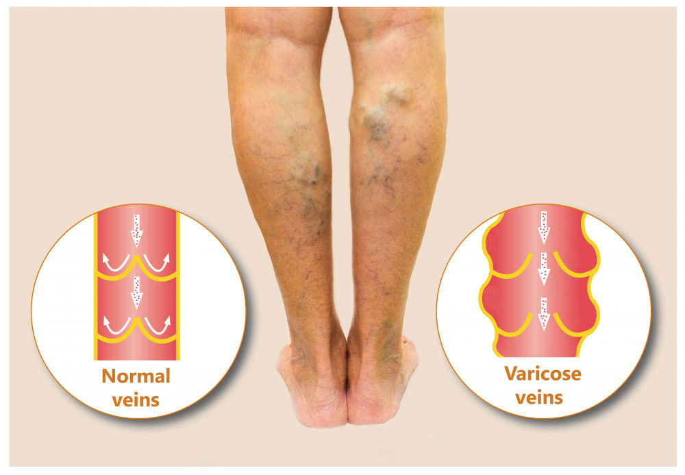 Kompressziós harisnya varikózus vénákhoz - Szívizomgyulladás September