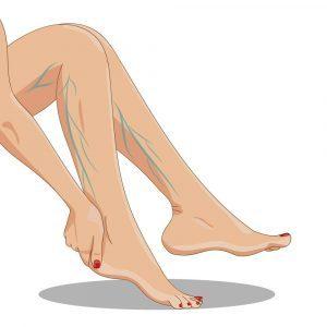 egy kis visszér, de egy láb, mint kezelni