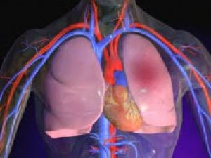 Trombózis, visszérgyulladás vagy visszérfájdalom – mi a különbség?