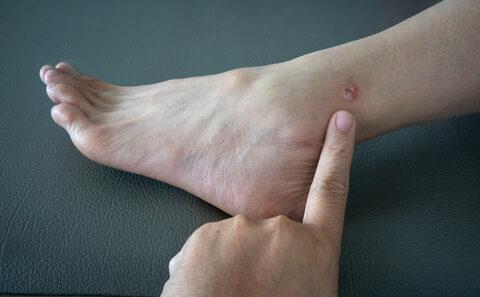 ekcéma a lábakon visszérkezeléssel