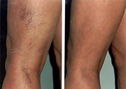 a lábakon lévő visszér kezelésének módszerei)