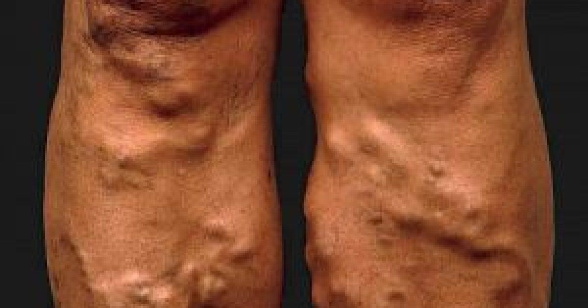illóolajokkal történő kezelés a visszeres lábakon