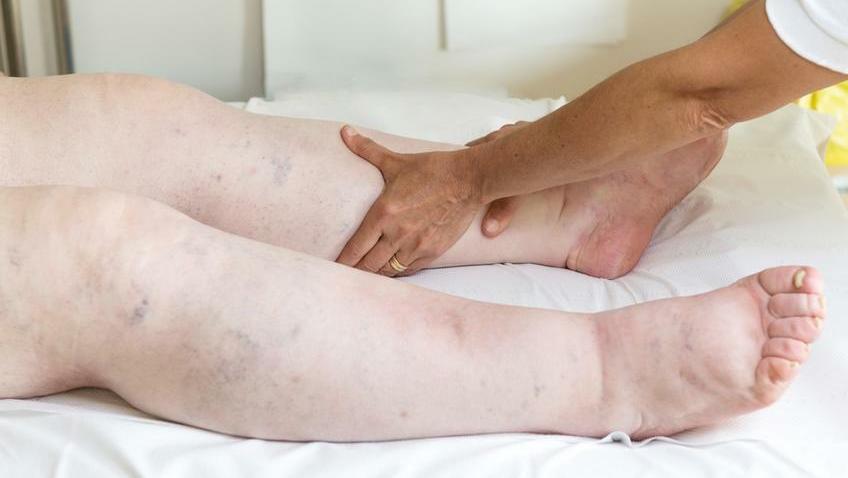 bizsergés a láb varikózisában)