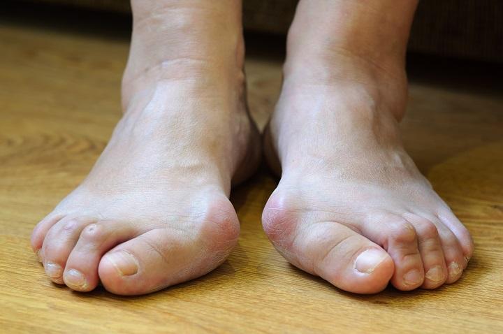 A lábak varikózisának megelőzése