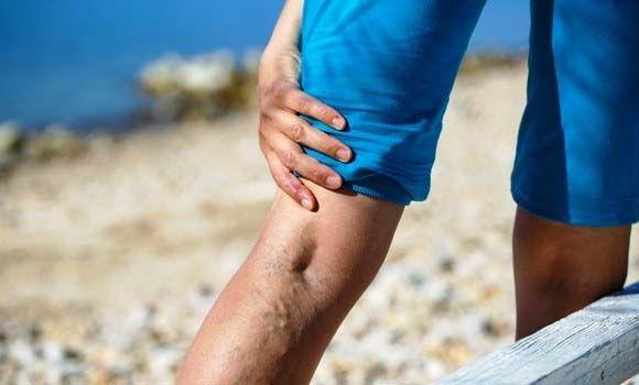 visszér a lábakon aloe kezelés