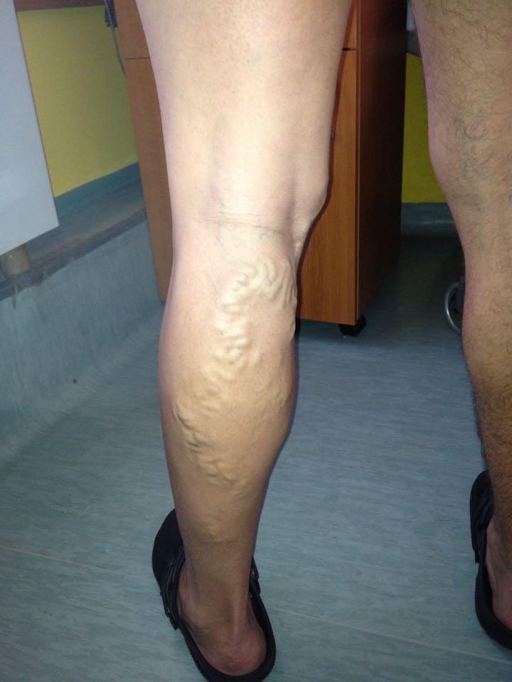a visszér lézeres kezelése vagy a szkleroterápia