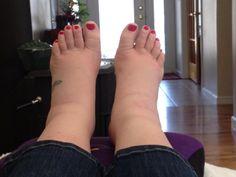 visszeres láberek kezelésére visszér kezelés fotó előtt és után