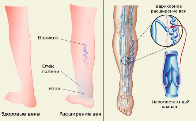 hogyan kell kezelni a lábak varikózisát