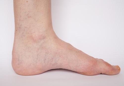 az egész láb visszérrel érintett