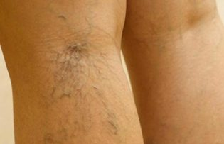 hogyan ellenőrzik a lábakon a visszerek rejtett visszér jelei