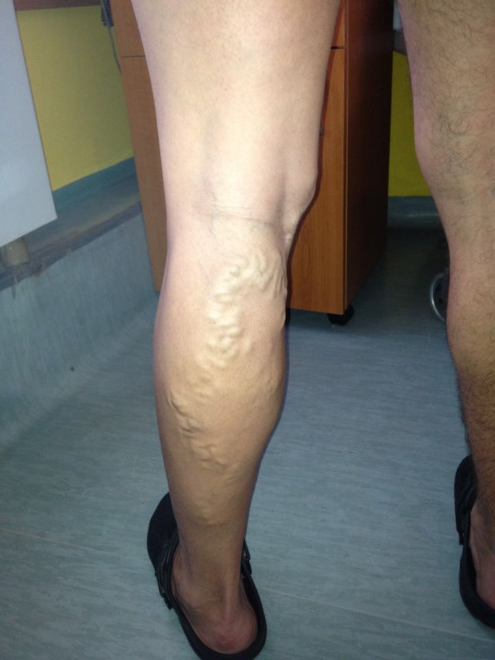 visszér műtét után hogyan kell kezelni)