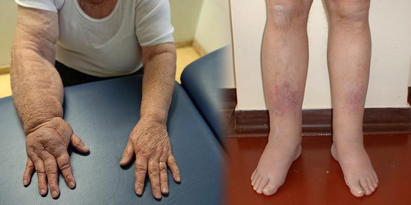 mi okozza a lábak varikózisát
