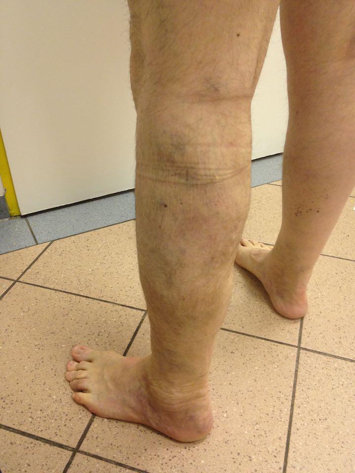 lábdagadás visszeres műtét után